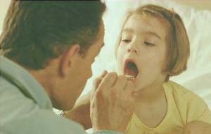 Symptoms Sore Throat